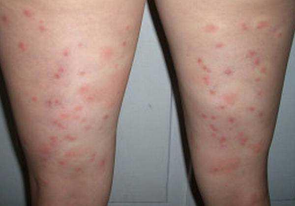 Как правильно лечить укусы постельных и бельевых вшей?