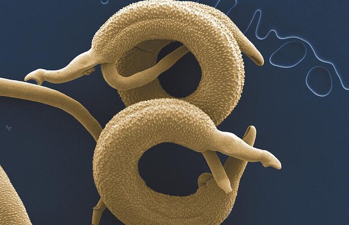 Самые эффективные народные средства лечение глистов и паразитов в домашних условиях