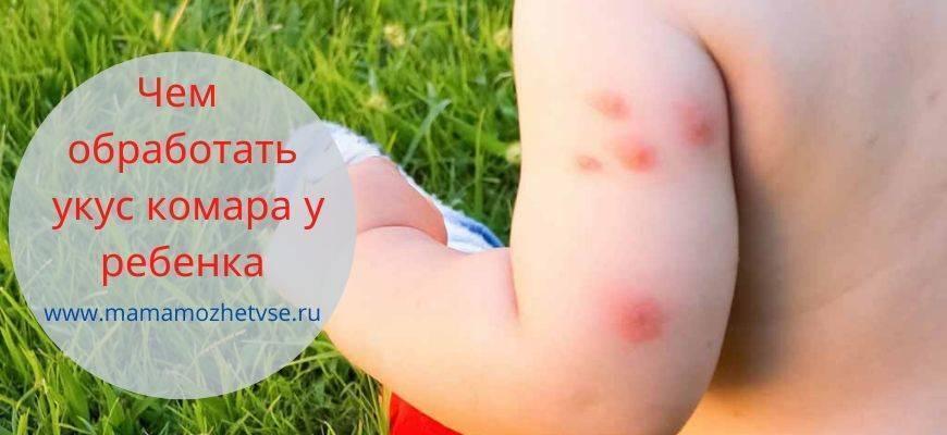 Чем мазать ребенку укусы комаров