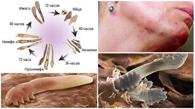 Чем опасен ресничный клещ (демодекс)