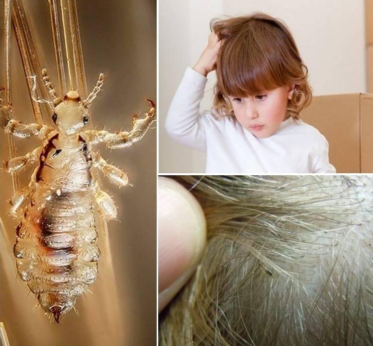 Вши – симптомы появления и фото укусов