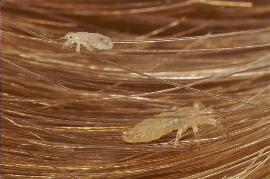 Как выглядят вши на голове, откуда берутся, и можно ли заразиться ими от домашних животных или в бассейне