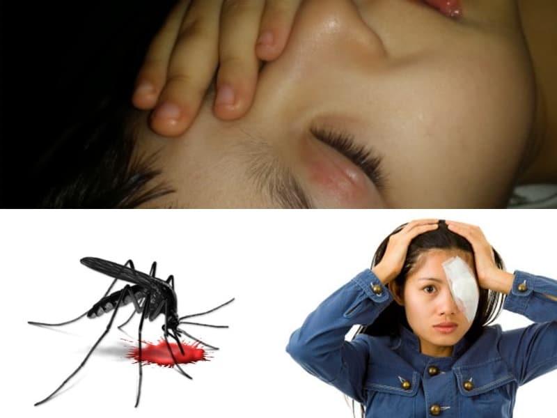 Ребенка укусил комар в глаз, все опухло: что делать, как снять отек века после насекомого?