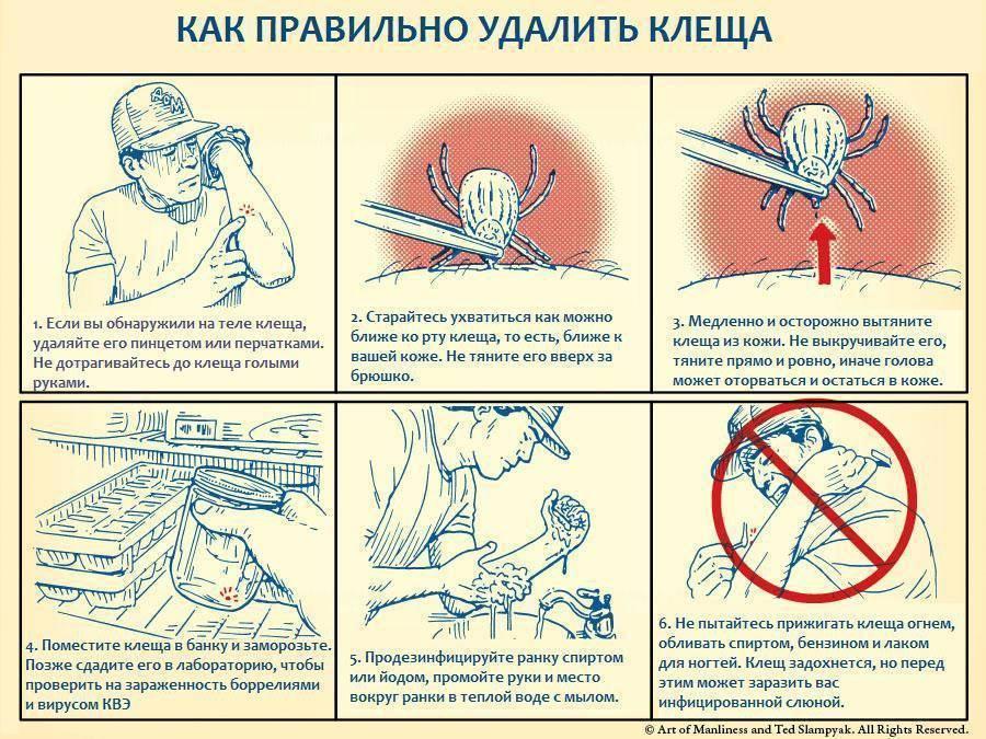 Что делать если клещ оторвался и головка осталась в теле?