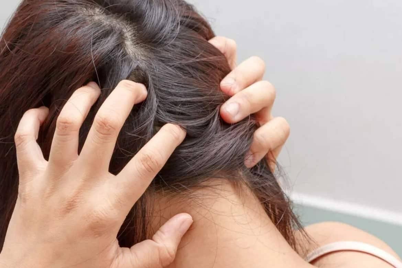 Могут ли вши появиться на нервной почве и от стрессов
