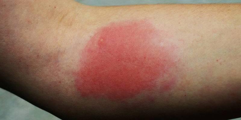 Способы устранения отека после комариных укусов