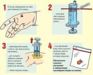 Описания пинцетов и других устройств для удаления клещей