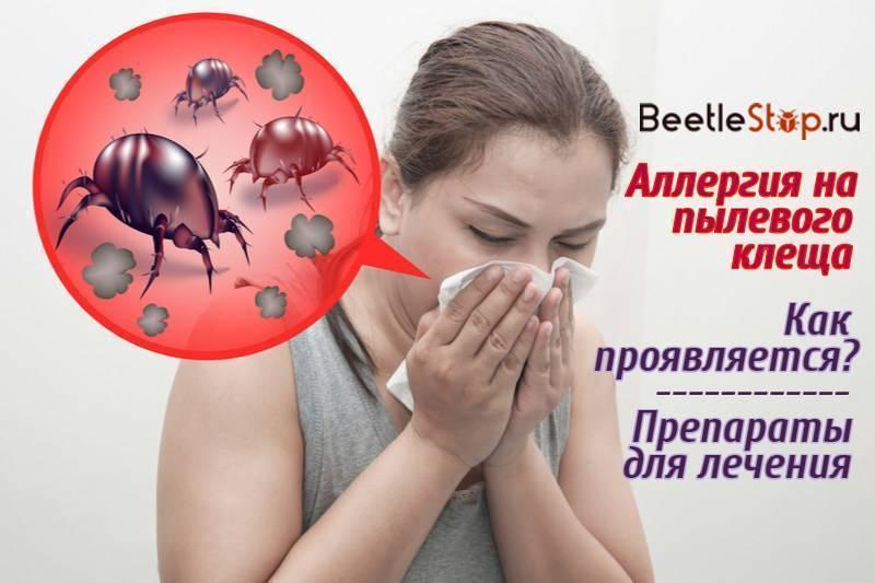 Аллергия на пылевого клеща — как бороться и победить