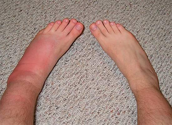 Что делать, если после укуса насекомого опухла нога?