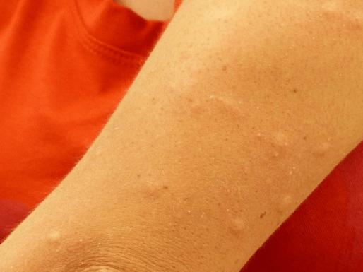 Раствор от укусов. как сделать содовый раствор от укусов комаров для детей и взрослых