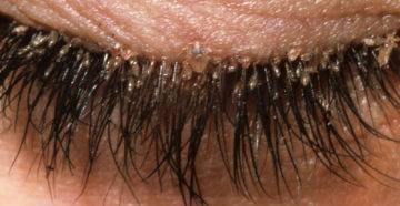 Сухие гниды: могут ли быть без вшей, как избавиться от них