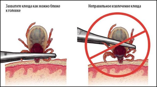 Когда и как проявляются симптомы после укуса клещей