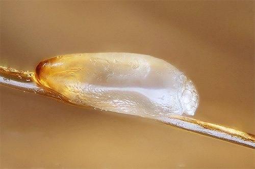 Как отличить вшей и гнид от перхоти