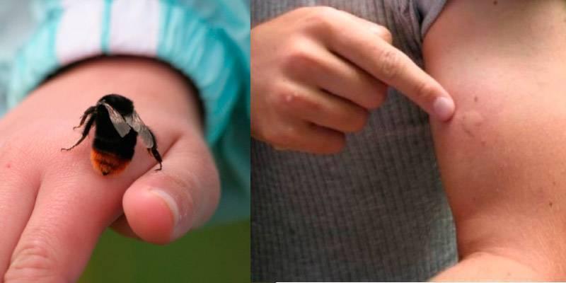 Чем опасны укусы шмелей, оказание первой помощи