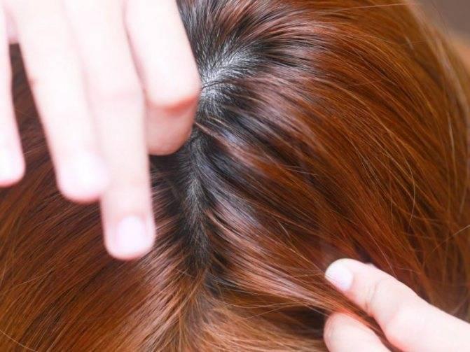 Могут ли завестись вши на окрашенных волосах?