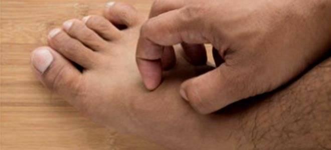 Аллергия на укусы клопов – реакция организма, симптомы и методы лечения