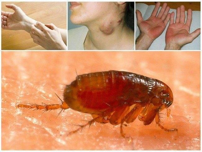 Как выглядят укусы блох на коже человека фото
