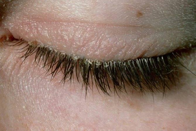 Ресничный клещ или глазной клещ (демодекс): симптомы и лечение