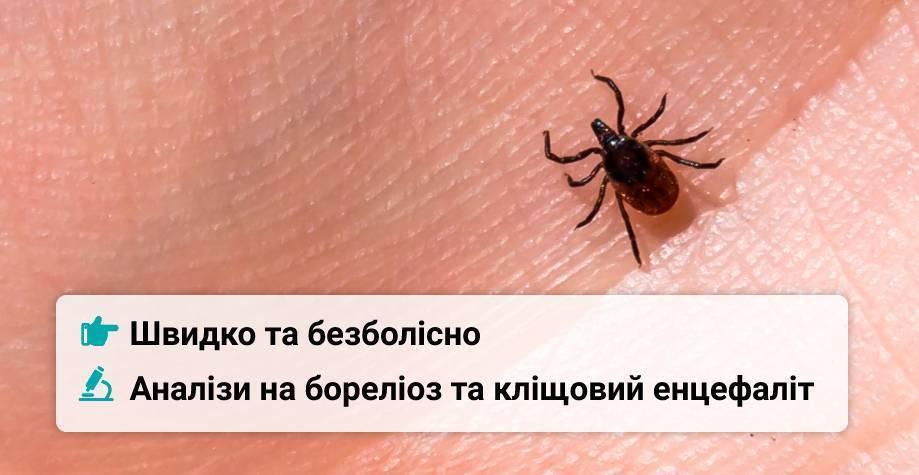 Куда сдать клеща на анализ в иркутске — куда обращаться при укусе клеща