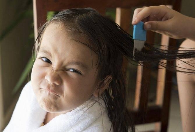 Лучшее средство от вшей и гнид для взрослых и детей – обзор и сравнение