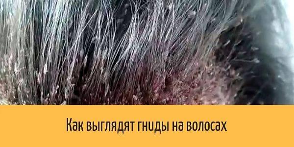 Живут ли вши вне головы человека