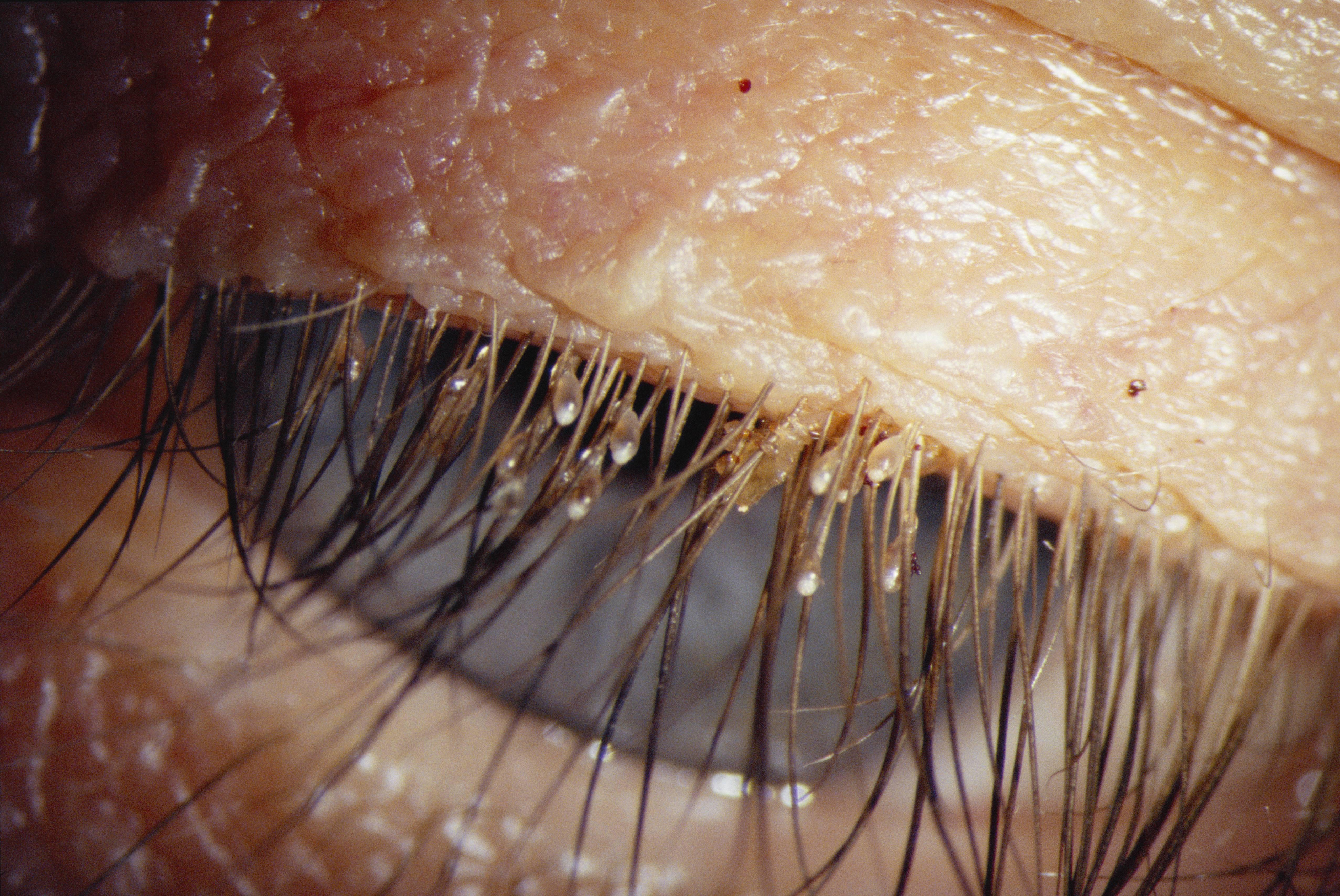 6 симптомов лобковых вшей и откуда они берутся?