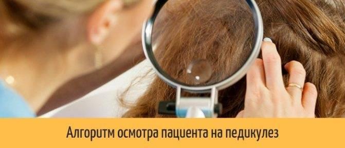 Осмотр пациента на педикулез в отделении