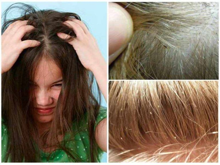 Эффективные меры лечения вшей у детей