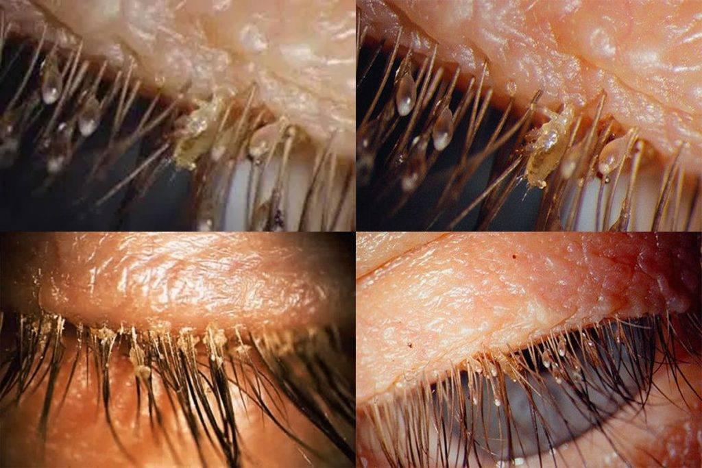 Сухие гниды – фото, как избавиться и могут ли быть гниды без вшей
