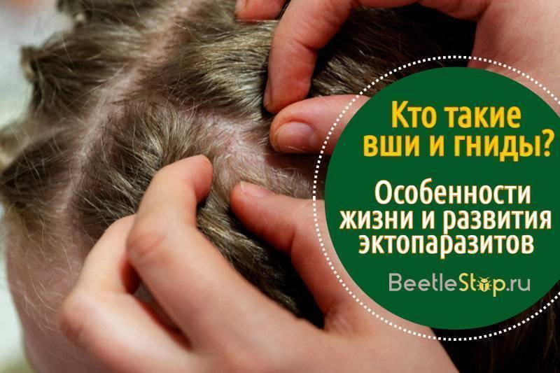 Гниды и вши: фото, описание и вред для человека