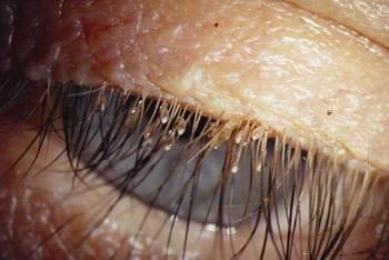 Лобковые вши: причины и лечение