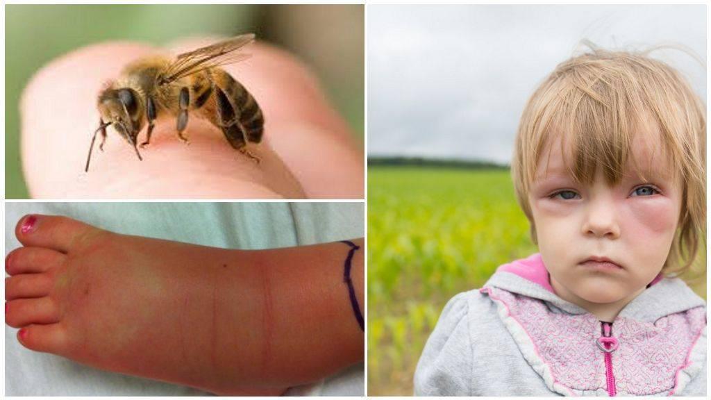 Проявление аллергической реакции на комаров