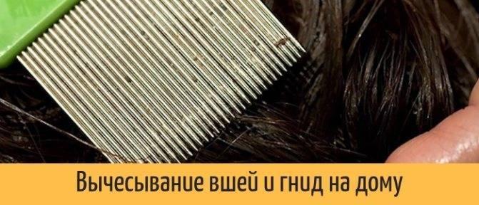 Как правильно вычесывать вшей и гнид?