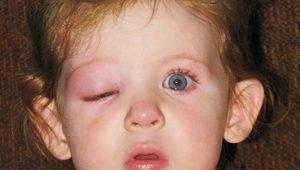 Укусила мошка в глаз — чем снять отек? как убрать отек глаз после укуса комара и пчелы?