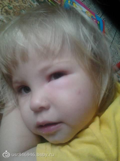 Укусил комар или мошка и опух глаз у ребенка: первая помощь и советы родителям