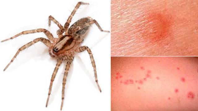 След от укуса паука