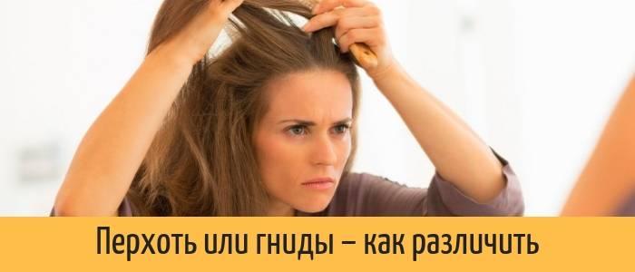 Как отличить перхоть от вшей и гнид: практические рекомендации
