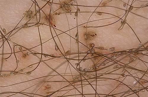 Мандавошь — фото, симптомы и лечение