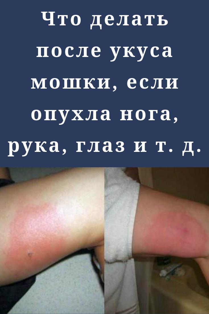 Сильно опухла после укуса комара. что делать, если опухла нога. от чего возникает отек
