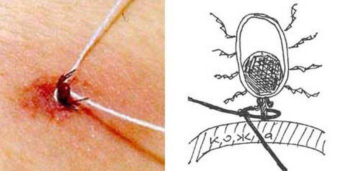 Клещи: краткое описание, профилактика и первая помощь при укусах