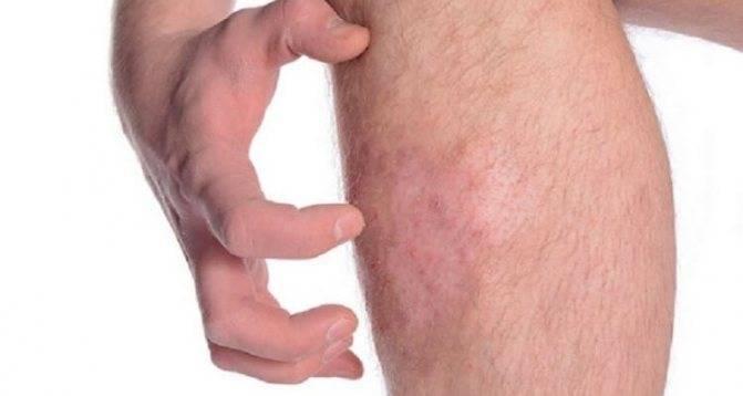 Как выглядят укусы муравьев. укусы муравьев – опасность, симптомы и лечение, последствия