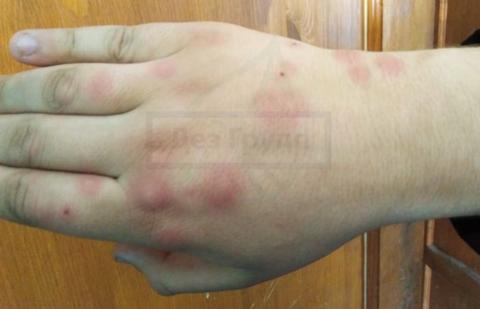 Почему у взрослых и детей после укусов комаров появляются шишки, чем лечить