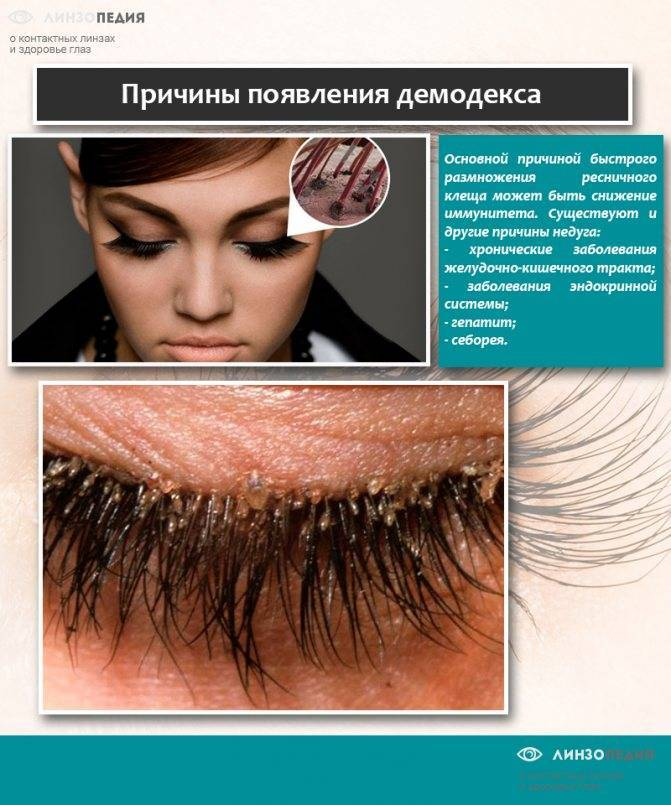Фото, симптомы и лечение глазного клеща