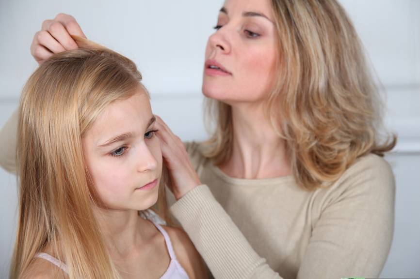 Головные вши человека: внешность, жизненный цикл и возможные опасности