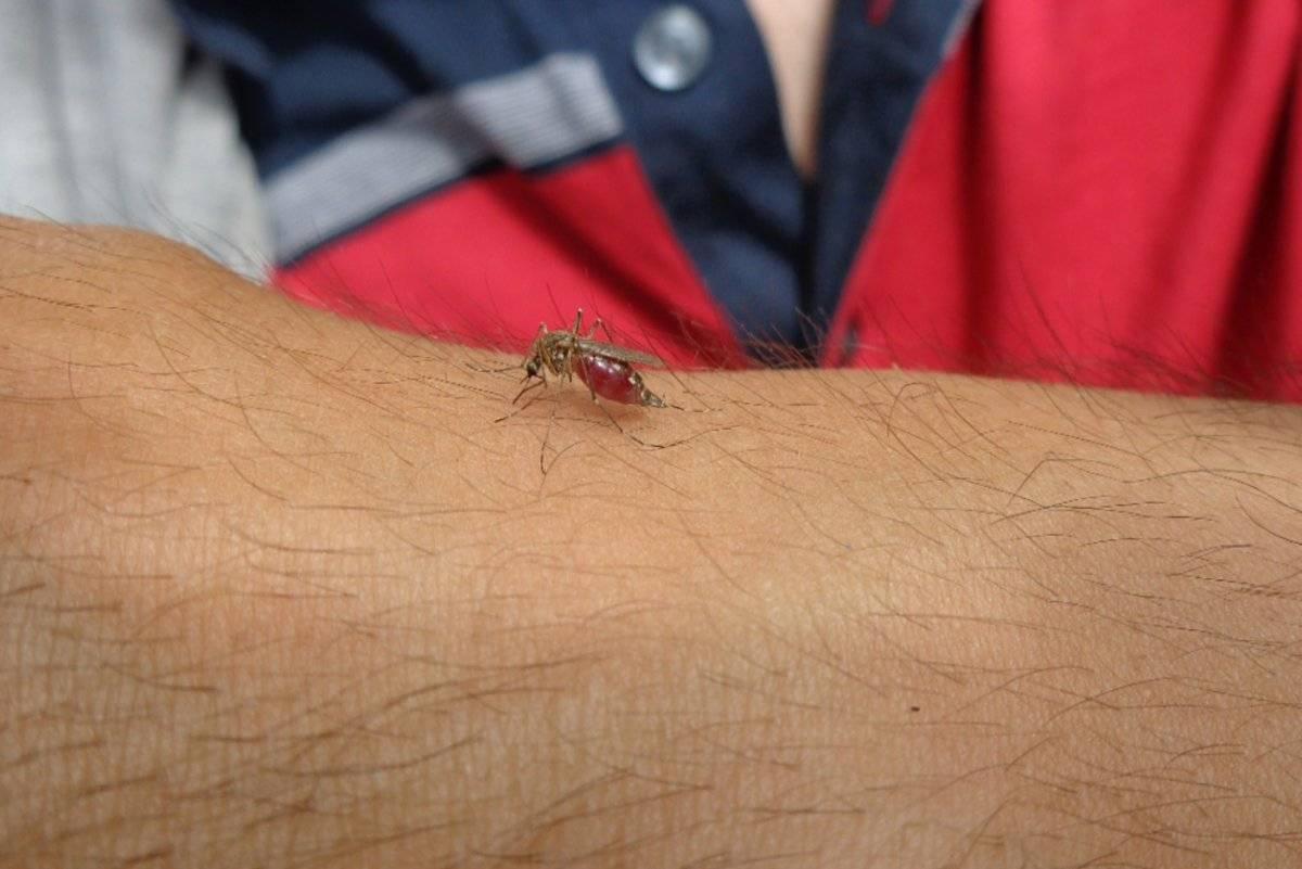 Как избавиться от укусов комаров за 5 минут