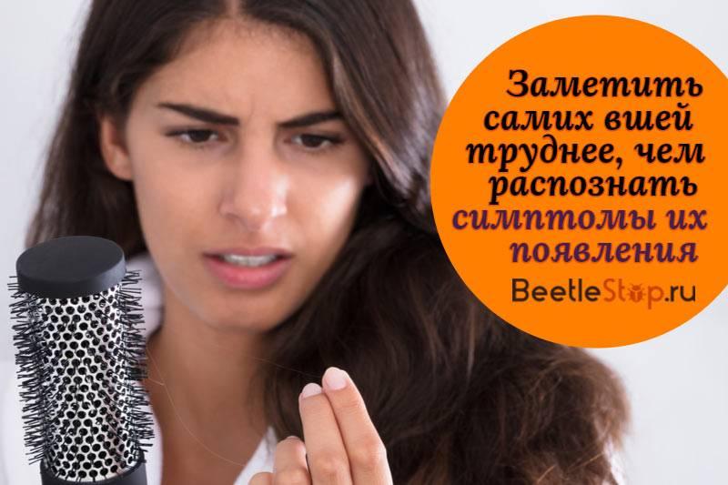 Какие признаки и симптомы вшей на голове?