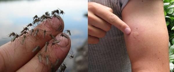 Средства для детей после укусов комаров